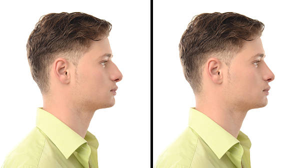 Before after photos of man with nose job plastic surgery. stock photo