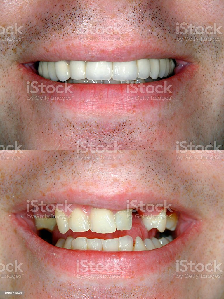 Before & After Smile Design stock photo
