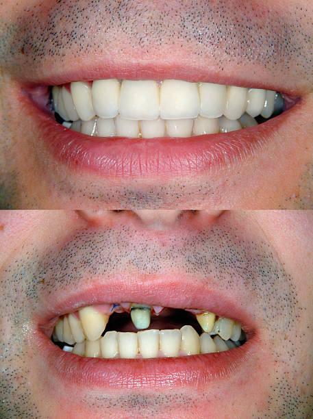 Vor & nach Lächeln Design – Foto