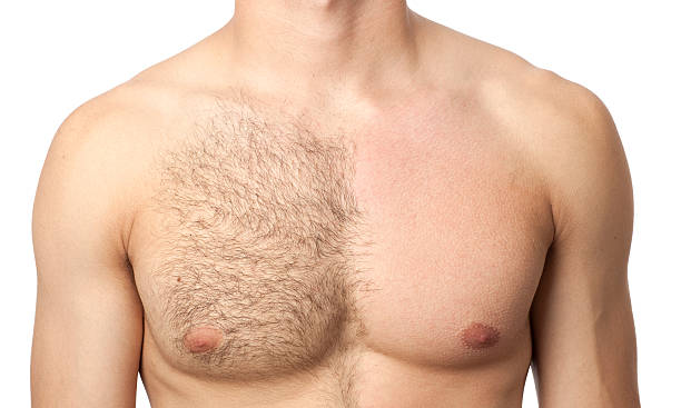 Before & after waxing treatment Portrait of  man chest in waxing treatment. chest torso stock pictures, royalty-free photos & images
