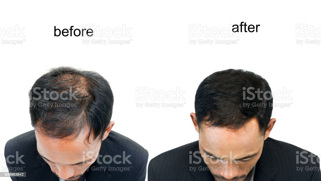 before and after bald head stock photo