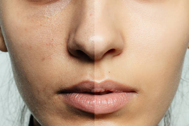 Before and after cosmetic operation. health, people, youth and beauty concept - Before and after cosmetic operation. Young pretty woman portrait. Before and after cosmetic or plastic procedure anti-age therapy, treatment anticipation stock pictures, royalty-free photos & images