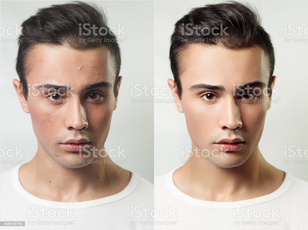 Before and after cosmetic operation. Young pretty man portrait stock photo