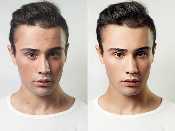 before and after cosmetic operation. young pretty man portrait - retouched image stock photos and pictures
