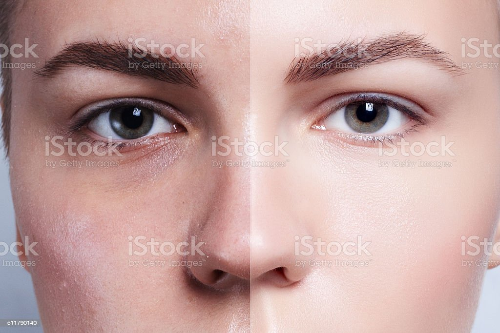 Before and after cosmetic operation. Young pretty woman portrait stock photo