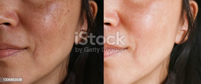 istock Before and after facial treatment concept. Face with melasma and brown spots and open pores. 1006863538