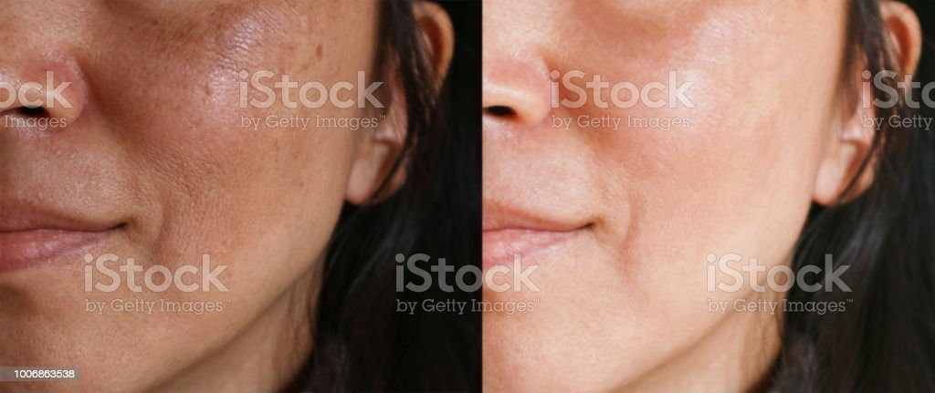 Before and after facial treatment concept. Face with melasma and brown spots and open pores. stock photo
