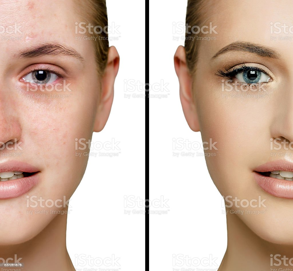 before and after  fresh daily make-up stock photo