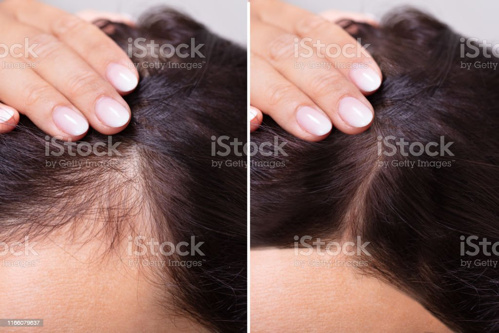 Before And After Hair Loss Treatment Stock Photo Download Image Now Istock