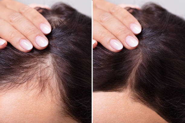 Before And After Hair Loss Treatment stock photo