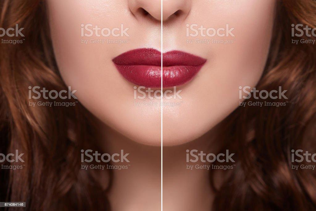 Vor Und Nach Der Lippe Füllstoff Injektionen Füllstoffe ...