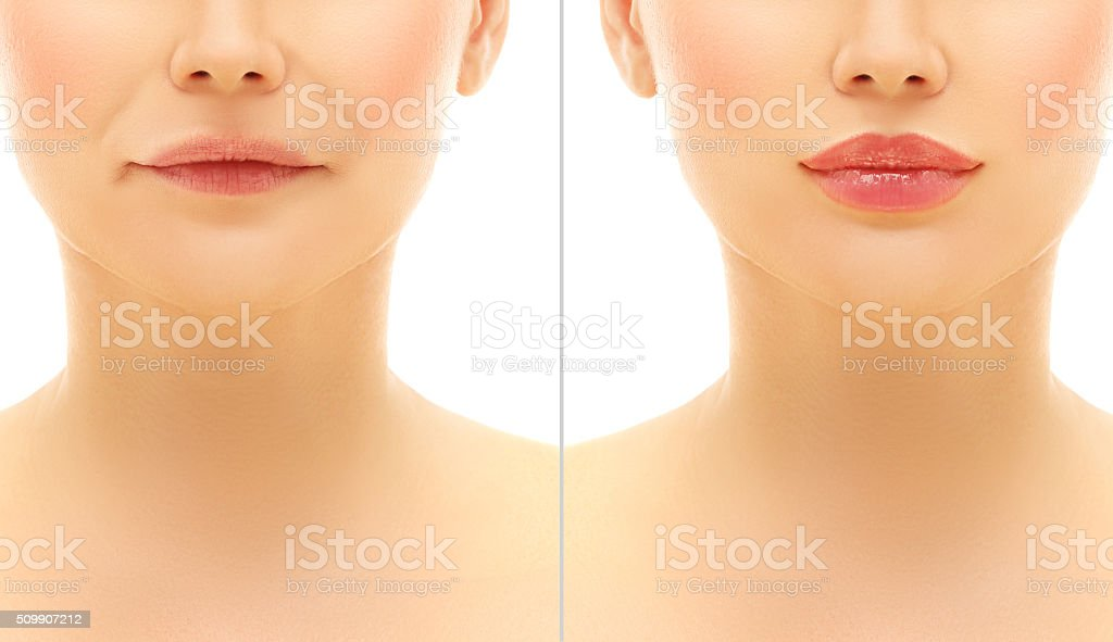Before and after lip injections. Filler for Nasolabial Lines. stock photo