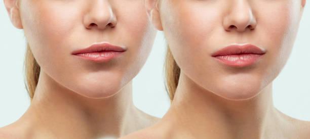 vor und nach den lippen füllstoff injektionen. schönheit aus kunststoff. schöne perfekte lippen mit natürliches make-up - gesicht make up anleitungen stock-fotos und bilder