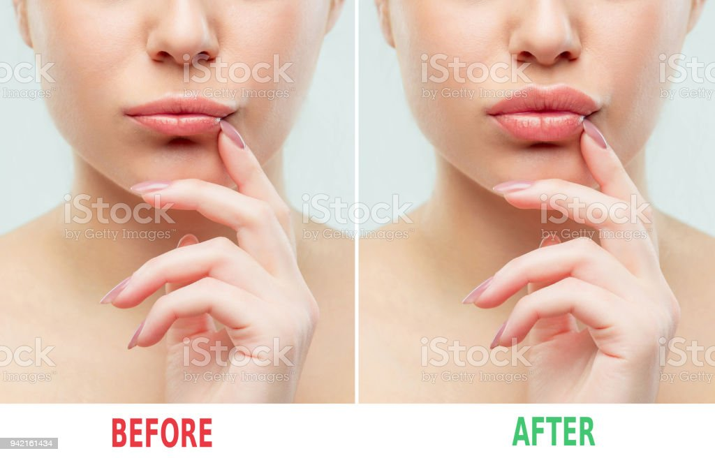 Before and after lips filler injections. Beauty plastic. Beautiful perfect lips with natural makeup stock photo