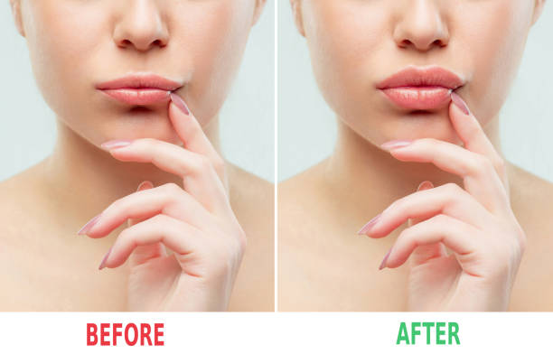 before and after lips filler injections. beauty plastic. beautiful perfect lips with natural makeup - human lips stock photos and pictures