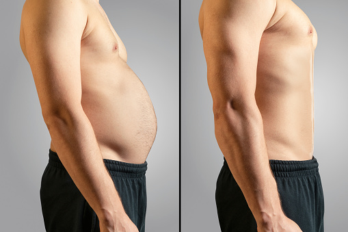 Is there a way to know Underweight or Overweight?
