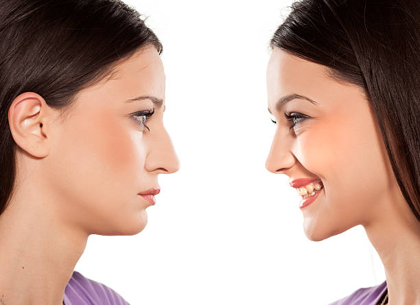 before and after nose surgery female face, before and after cosmetic nose surgery human nose stock pictures, royalty-free photos & images