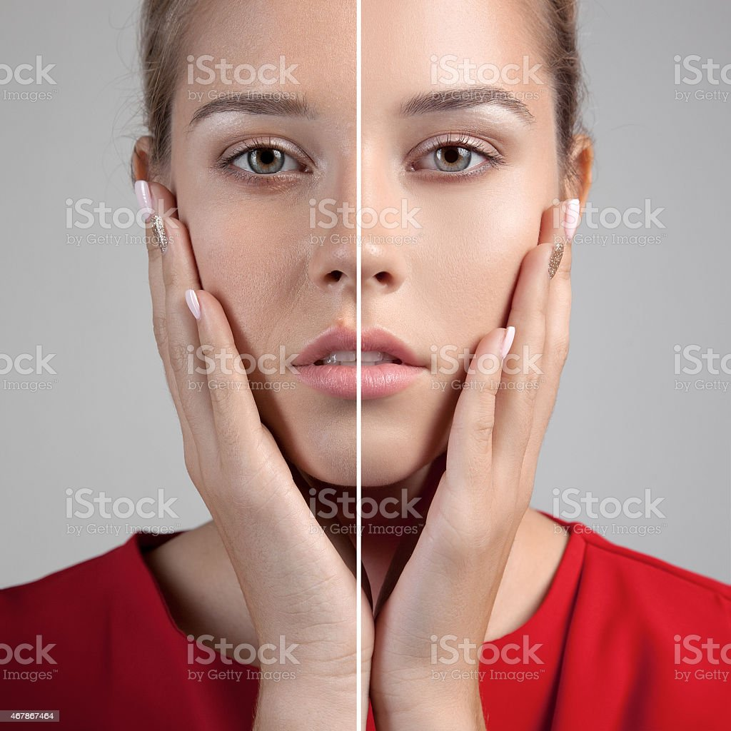 Before and after of person clearing facial blemishes stock photo