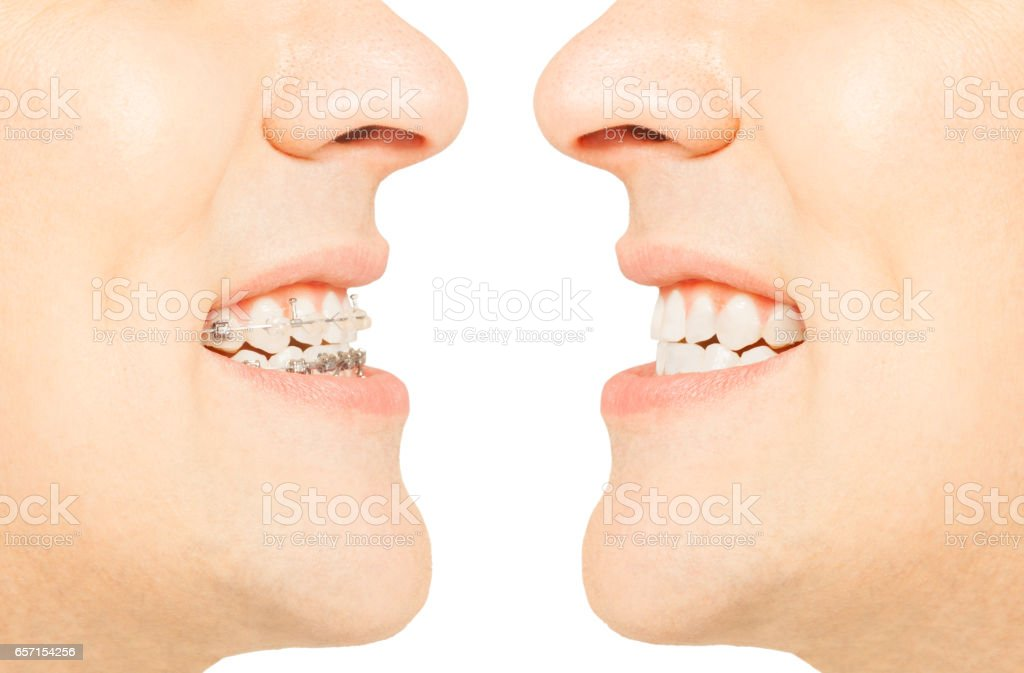Before and after orthodontic treatment with braces stock photo