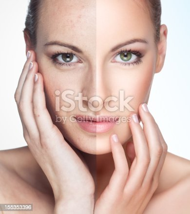 istock Before and after. 155353396