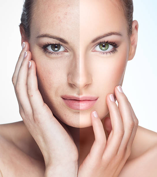 before and after. - acne stock photos and pictures