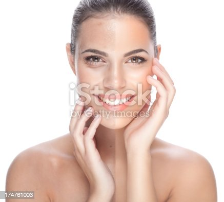 istock Before and after. 174761003