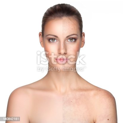 istock Before and after. 180842151