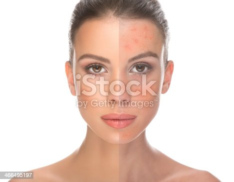 istock Before and after. 466495197