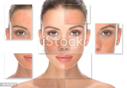 istock Before and after. 467603823