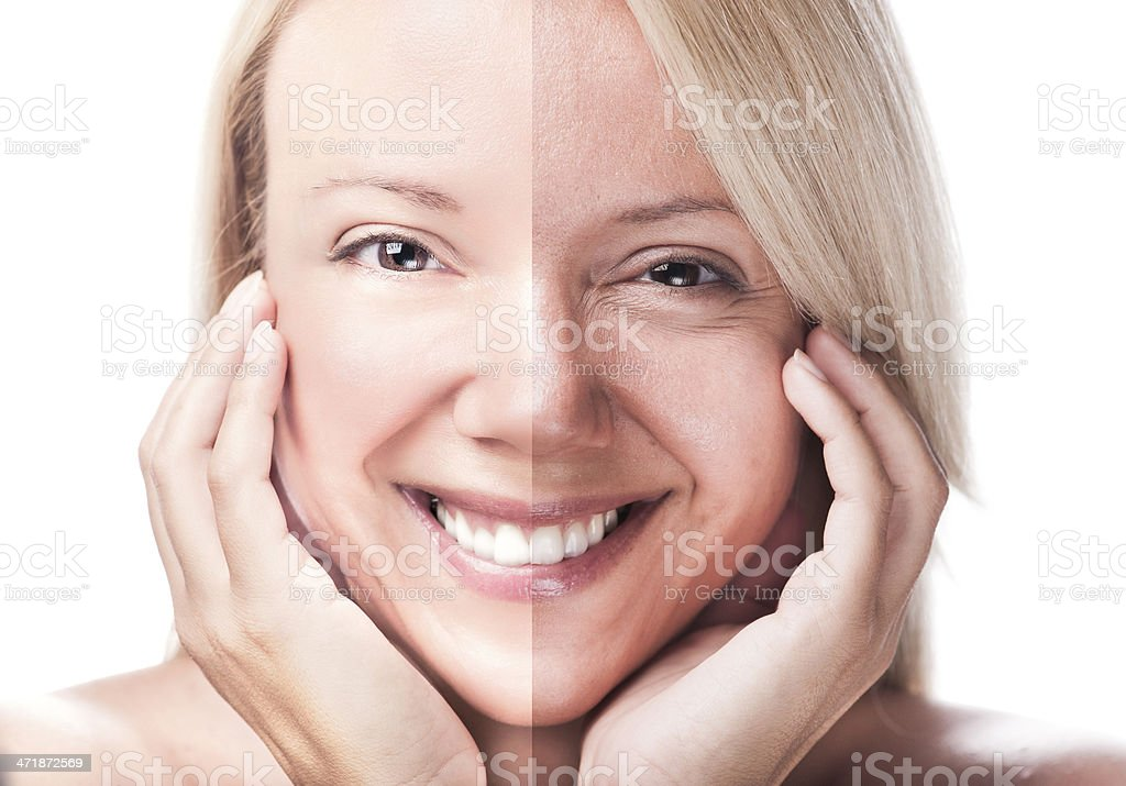 Before and after royalty-free stock photo