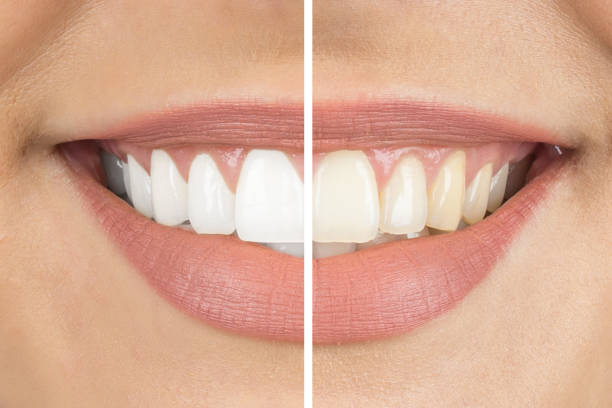 Before and after Before and after teeth stock pictures, royalty-free photos & images
