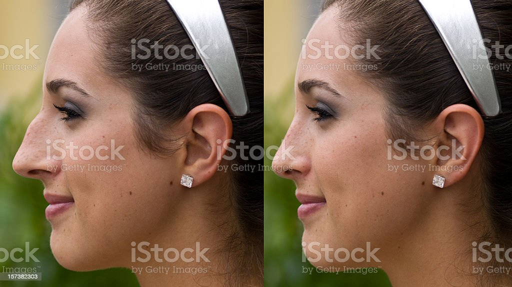 Before and after Plastic Surgery stock photo