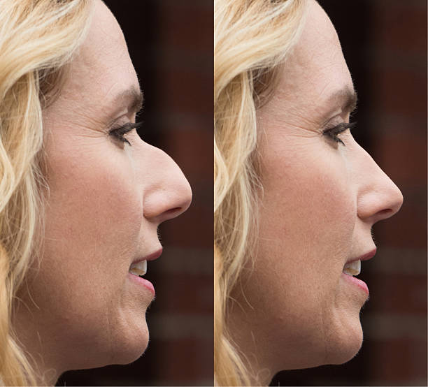 Before and after Plastic Surgery Mature women Before and after Plastic Surgery human nose stock pictures, royalty-free photos & images