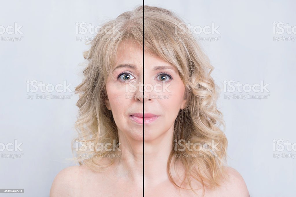 Before and after skin treatment bildbanksfoto