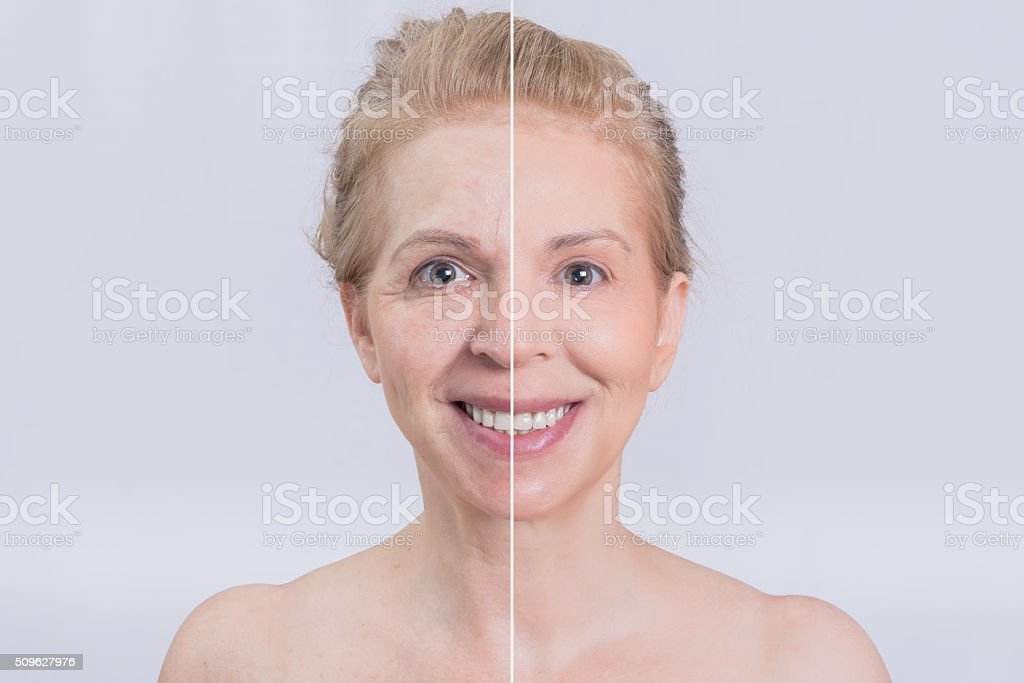 Before and after skin treatment stock photo
