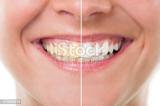 istock Before and after whitening 475063916