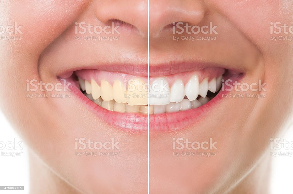 Before and after whitening stock photo