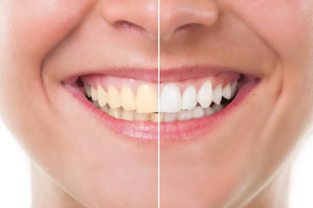 before and after whitening - tanden bleken stockfoto's en -beelden
