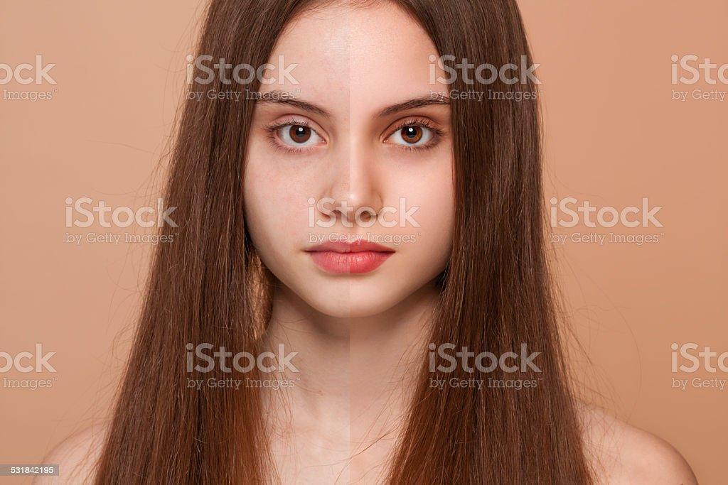 Before and after women stok fotoğrafı
