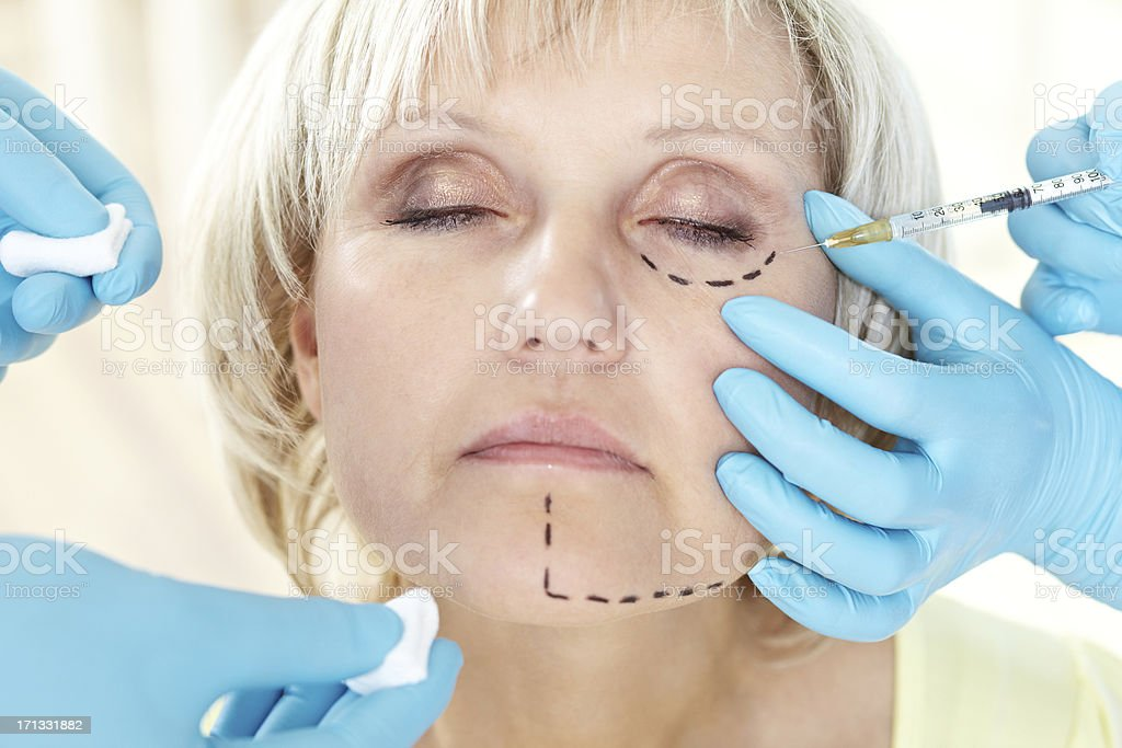 Before cosmetic operation royalty-free stock photo
