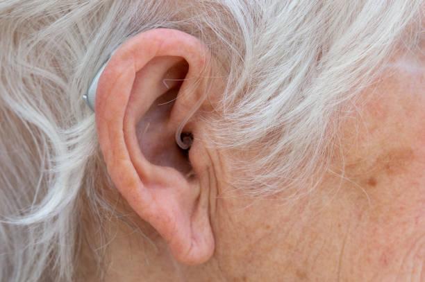 Behind The Ear hearing aid being worn by pensioner. stock photo