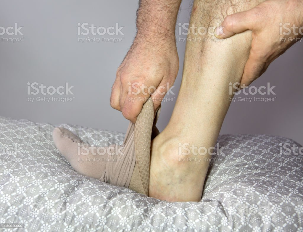 Bein mit Krampfadern stock photo