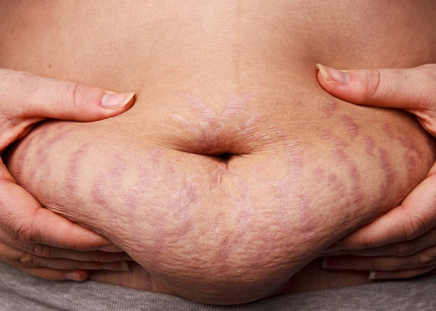 Belly Fat Stretch Mark stock photo