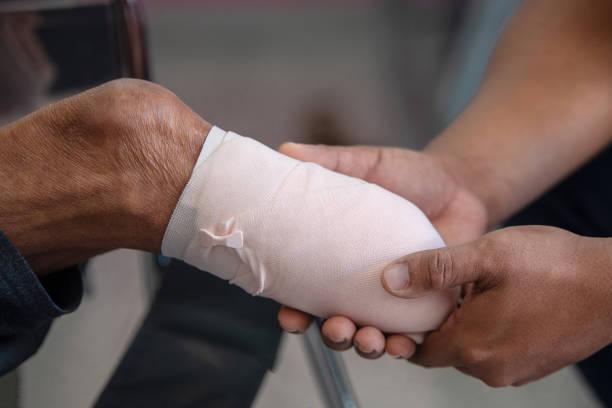 below knee amputation patient with elastic bandaging stock photo