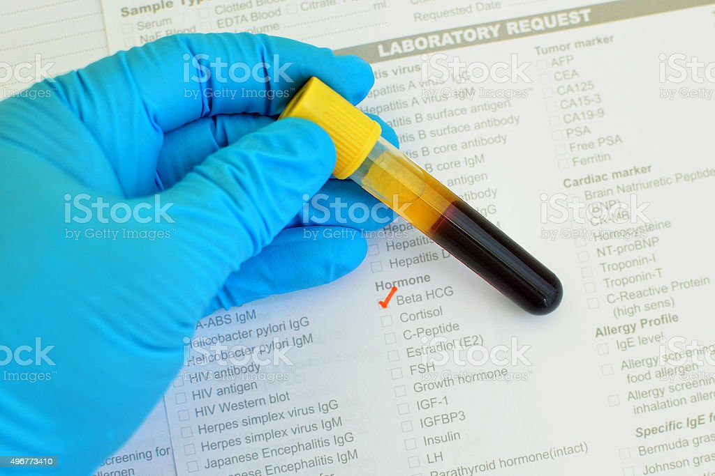 Beta Hcg Testing Stock Photo & More Pictures of 2015 - iStock