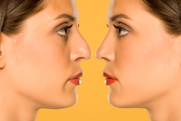 beuatifull young woman before and after nose surgery stock photo