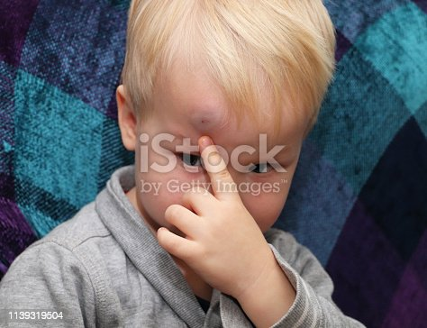 istock A big bruise on the forehead of a little boy 1139319504