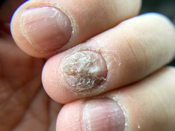 Big close up of fungus Infection on Nails Hand, Finger with onychomycosis, Fungal infection on nails. Big close up of fungus Infection on Nails Hand, Finger with onychomycosis, Fungal infection on nails. psoriasis stock pictures, royalty-free photos & images