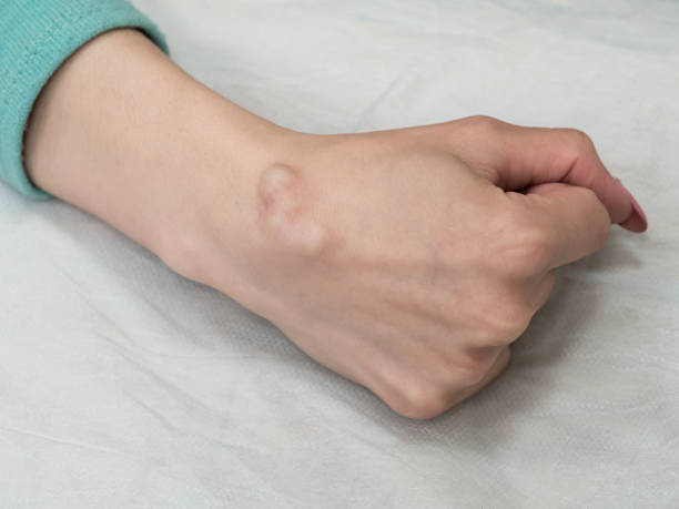 big cyst (hygroma), fluid filled lump associated with a joint, a tumor or swelling on top of a joint. - cyst stock pictures, royalty-free photos & images