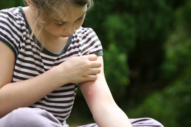 big mosquito bite - scratching stock photos and pictures